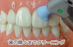 PMTCで歯の隅々までクリーニング