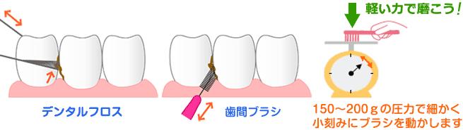 歯磨き方法の説明の基本。セルフケアとプロフェッショナルケア